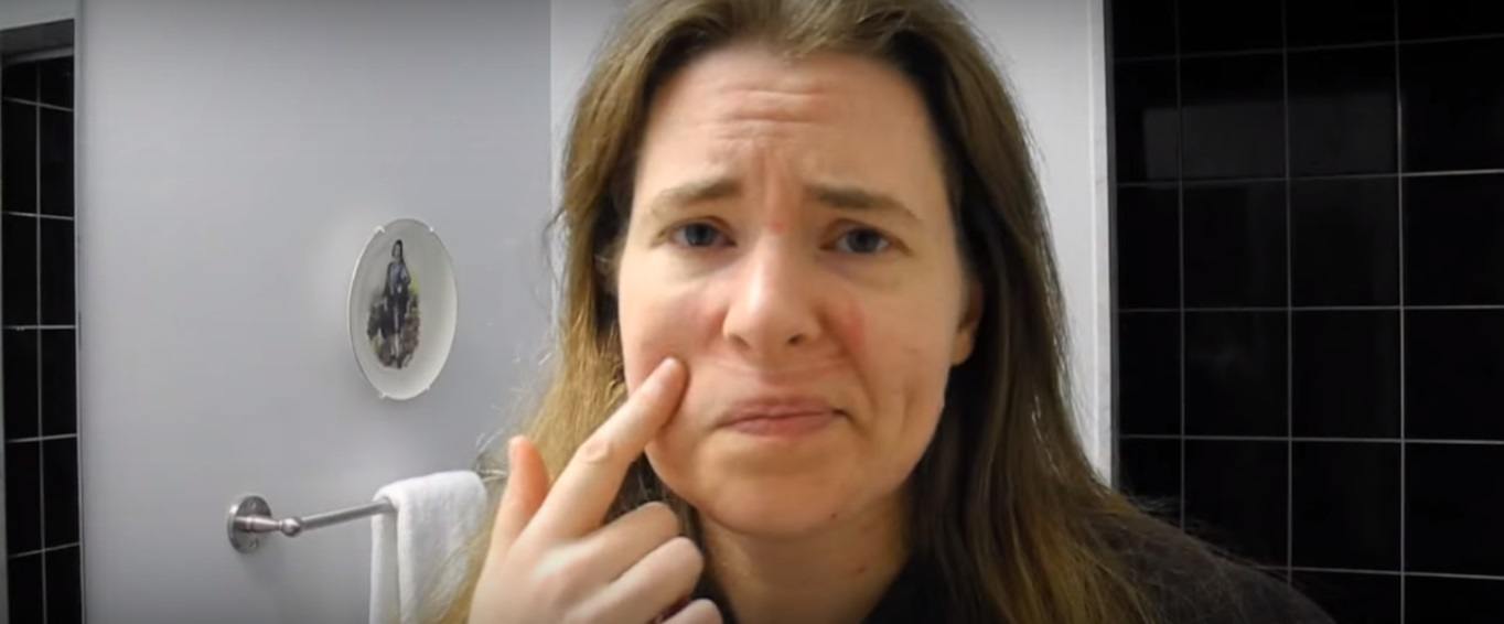 How To Remove CPAP Marks From Face | SleepTalk | VitalAire